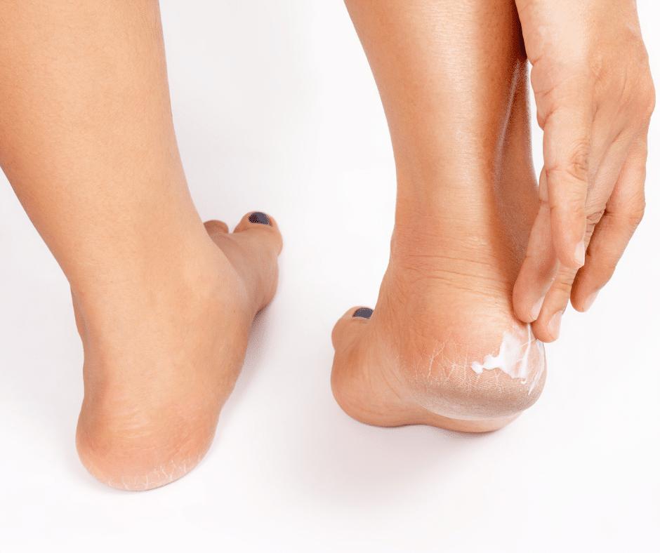 best moisturiser for feet, foot moisturiser