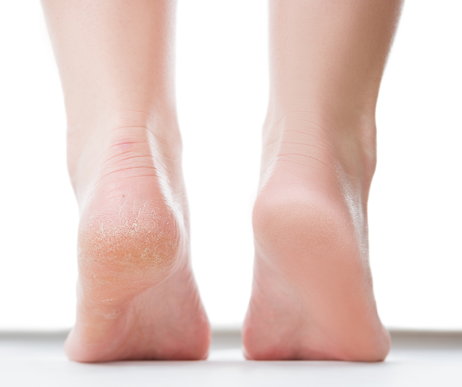 Chiropody At Home - Everything You Need To Know