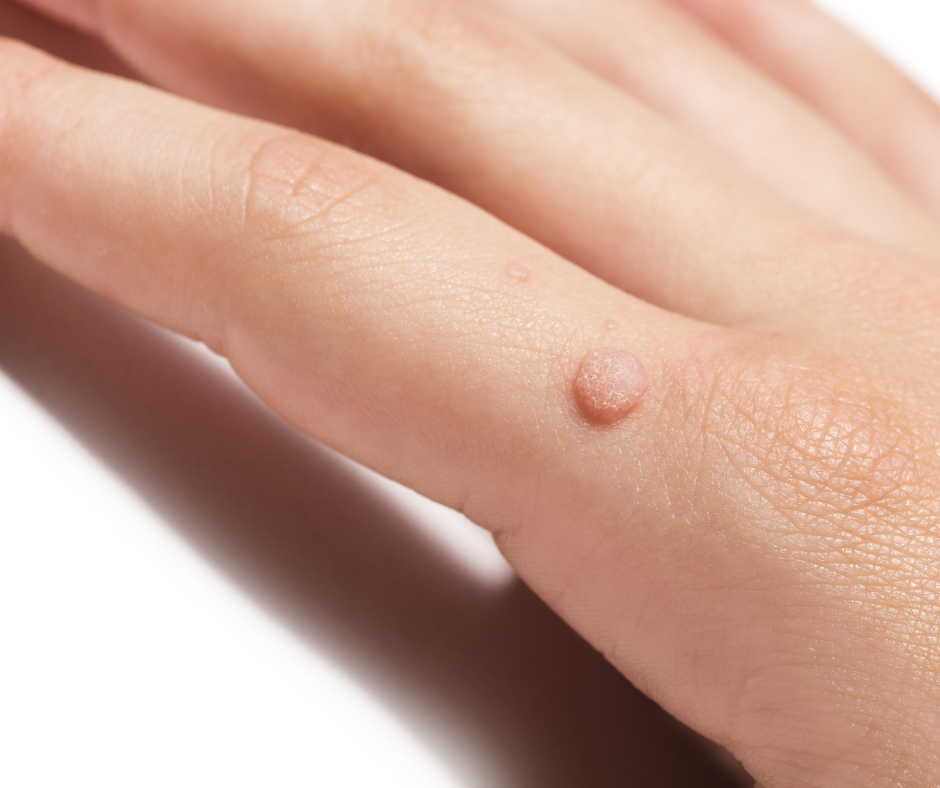 You have a verruca and it's become painful and swollen. Maybe it's infected: find out the right treatment for you!