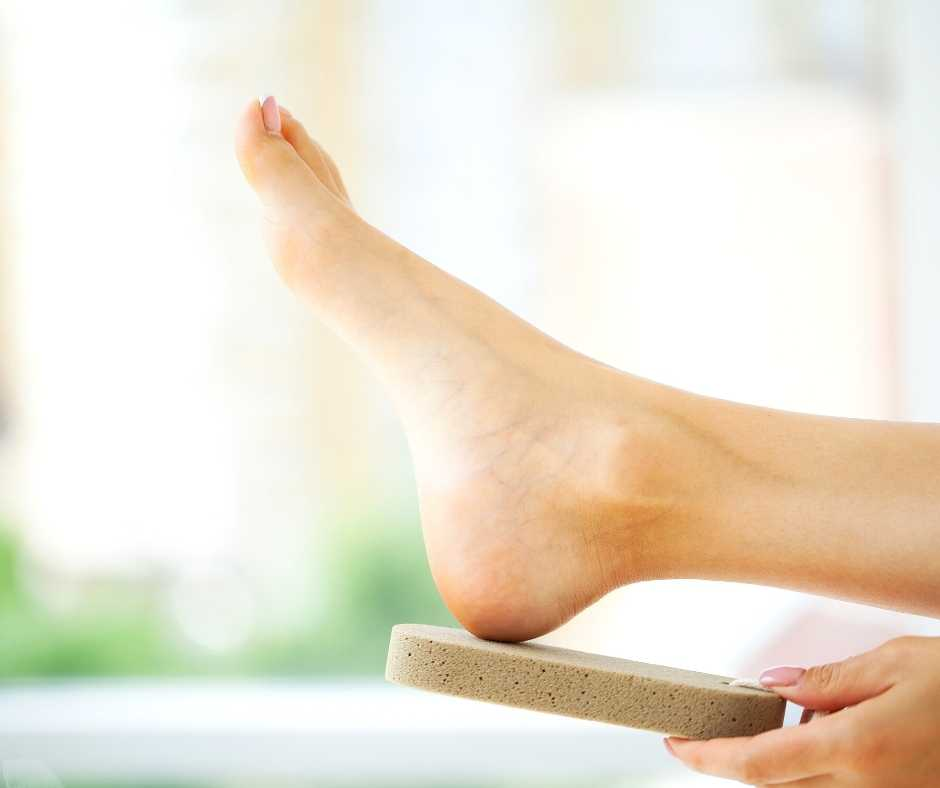 How to get rid of corns and calluses, Northwich Foot Clinic