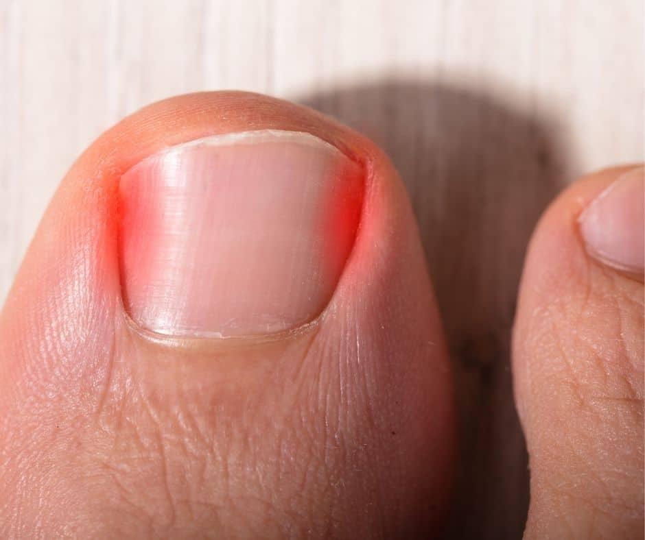 Infected ingrown toe nail, ingrown toenails