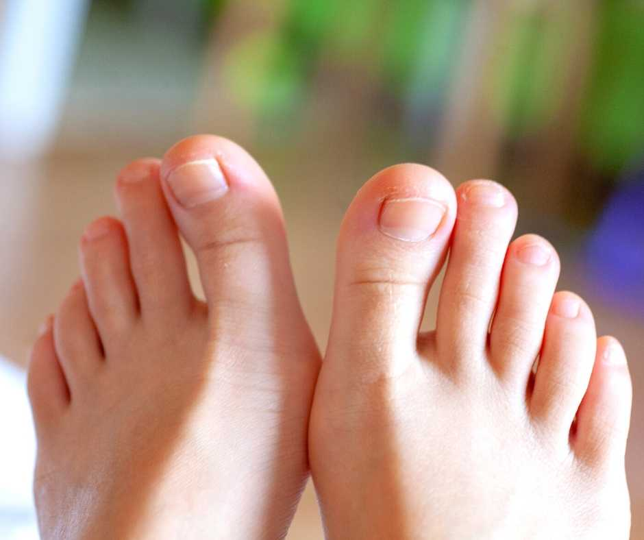 Ingrown Toenail? Here's What You Need To Do Northwich Foot Clinic Cheshire
