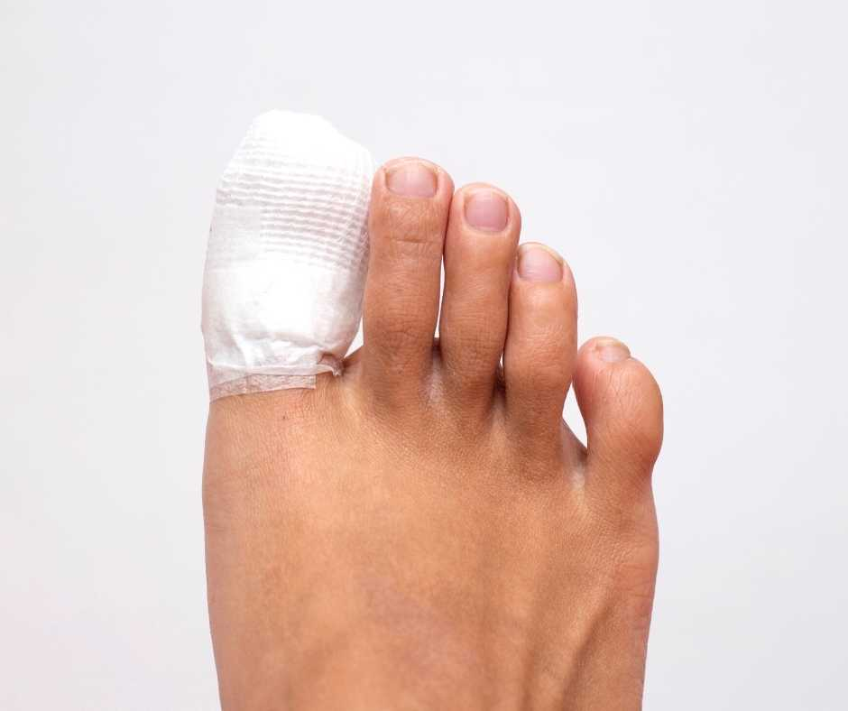 toenail removal surgery from Northwich Foot Clinic