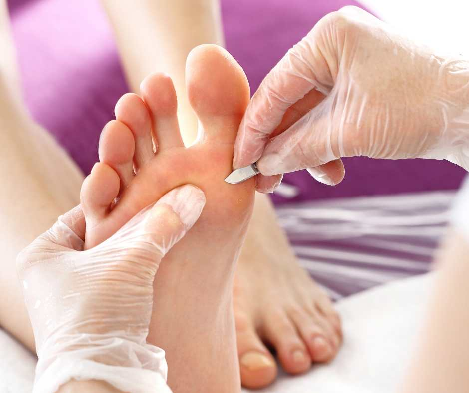 What Is A Chiropodist And Do I Need To See One? Northwich Foot Clinic Cheshire Staffordshire North West