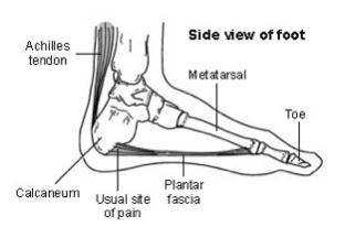 heel-pain-1